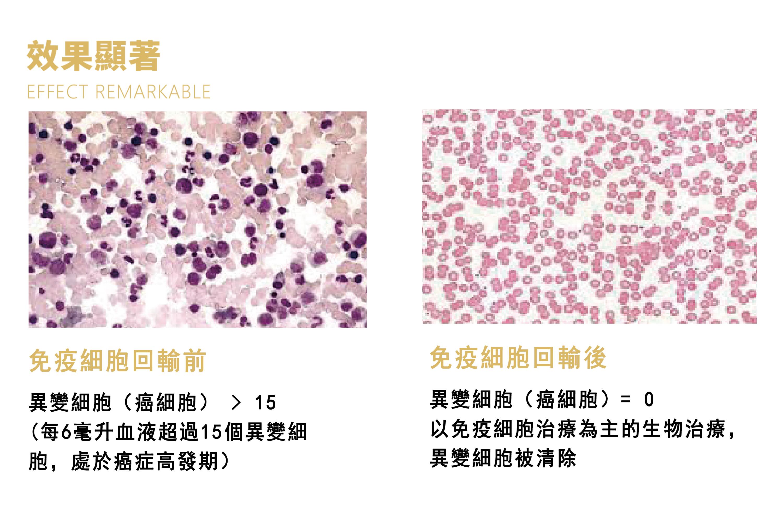 免疫细胞治疗效果